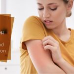 Know-about-Allergy-Its-Types-Test-and-Prevention
