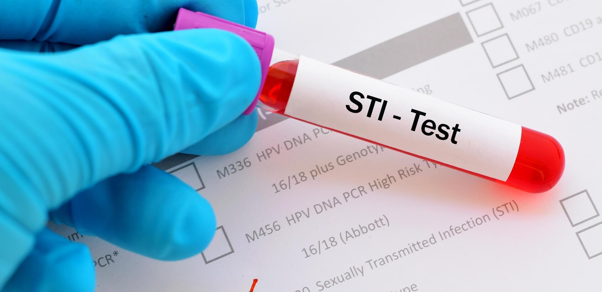 Premier Plus STI Blood Profile (advanced screen) SH5