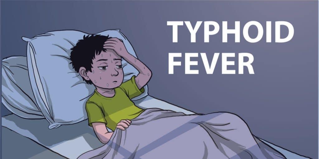 Typhoid-fever